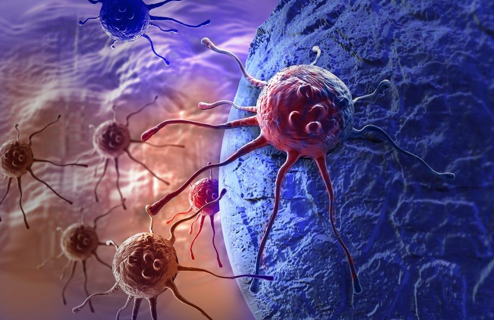 Kanker dan Perjalanan Penyebarannya